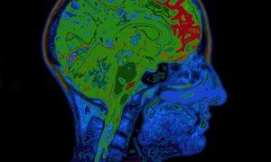 Variaties In Hersenstructuur Gelinkt Aan Functie En Gedrag